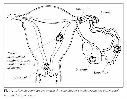 Ectopic Pregnancy Figure 1 Image