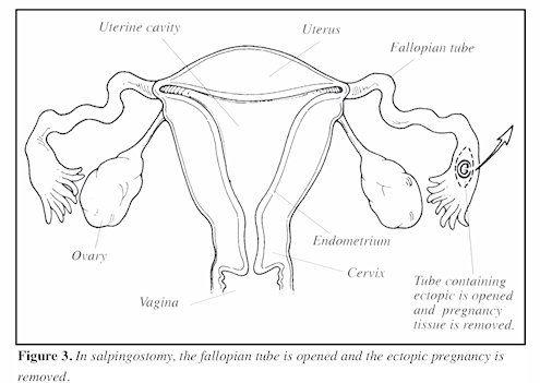 Ectopic Pregnancy Figure 3 Image